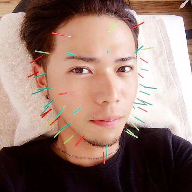 肌荒れ、ほうれい線で老け顔改善に