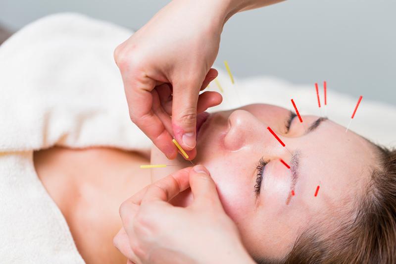 鼻づまり、鼻水、小顔矯正、顎関節症治療、頭痛治療、耳鳴りなどにも効果ある美容鍼